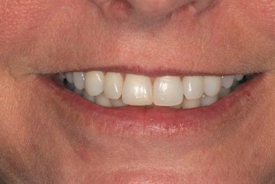 Teeth Whitening in Barrow-in-Furness